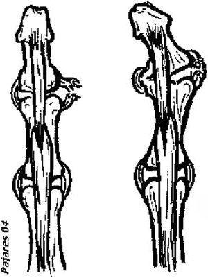 Distensión de ligamento colateral cubital de articulación IFD y no tratada tras traumatismo repetitivo, desarrollando inestabilidad lateral. El efecto tractor de la inserción del tendón flexor profundo de los dedos en la falange distal actúa como cuerda de arco desarrollando la deformidad.