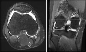 Estudio preoperatorio de resonancia magnética mostrando el tendón semitendinoso (A) y gracilis (B).
