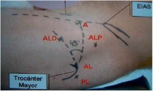 Portales artroscópicos. EIAS: espina iliaca anterosuperior. A, anterior; AL, anterolateral; ALD, anterolateral distal; PL, posterolateral.