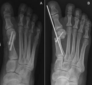A) Osteotomía en chevron percutánea, fijación con dos tornillos. B) Osteotomía de Bosch con la colocación de tornillo y aguja de Kirschner.