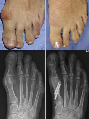 Seguimiento a un año de osteotomía en chevron percutánea.