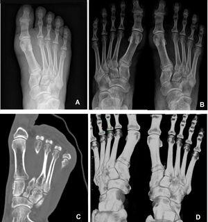 Diagnóstico por imagen en pie derecho. A) Radiografía inicial en descarga. B) Radiografía en carga realizada ambulatoriamente donde se incluyen ambos pies. C-D) Imagen TC; corte axial y reconstrucción donde de aprecia la diástasis respecto al lado sano.