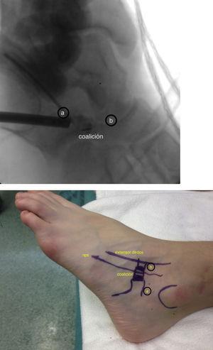 Referencias anatómicas y portales de trabajo y correspondencia en escopia. A) Portal de visión. B) portal de trabajo (nps: nervio peroneo superficial).