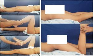 Examen físico realizado antes de la intervención quirúrgica. La paciente tiene signo de Thomas negativo A) y prueba de Ely positiva B).