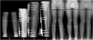 A) DPMT en varón de 12 años. Dismetría de 5cm y valgo de 13°. B-D) Tratamiento con fijación externa monolateral para elongación ósea proximal tibial de 7cm y osteotomía varizante de acortamiento mediodiafisaria. E) Resultado tras la discrepancia compensada con valgo residual. F) Crecimiento guiado tibia proximal medial. G) Resultado final a los 15 años.