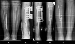 A) Varón de 12 años. DPM tibia derecha intervenida a los 3 años en su país de origen mediante osteotomía mediodiafisaria de tibia distal. Dismetría de 5cm. Sinostosis TP. B y C) Alargamiento de tibia de 5cm sobre placa ranurada. D-F) Resultado final.