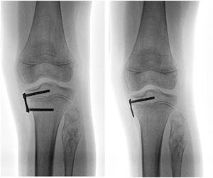 Retiro parcial del implante en tibia proximal (sleeper plate).