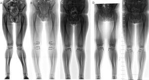 Paciente de cinco años con diagnóstico de enfermedad de Pyle (OMIN número 265900). A) Deformidad angular. B) Corrección con crecimiento guiado. C) Retiro parcial. D) Recurrencia de la deformidad angular. E) Nueva corrección con placas en banda de tensión.
