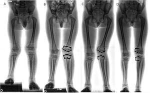 Paciente de cuatro años con diagnóstico de hemimelia peronea. A) Discrepancia de longitud. B) Fisiodesis transitoria. C) Deformidad progresiva luego del retiro parcial. D) Corrección de la deformidad angular.