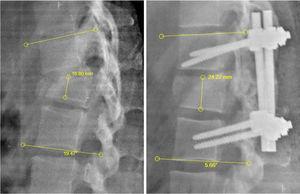 Medición de la altura y ángulo Cobb. Radiografía lumbar en proyección lateral pre y postquirúrgica para esquematizar la toma de medidas de la altura y ángulo Cobb. Altura del cuerpo vertebral, se mide tomando la distancia entre el platillo superior y platillo inferior de la vértebra fracturada, se expresa en milímetros. Ángulo Cobb, es el ángulo que resulta de la intersección de dos ángulos de 90° tomando como reparo el platillo superior de la vértebra superior y el platillo inferior de la vértebra inferior respecto a la vértebra fracturada, es expresado en grados.