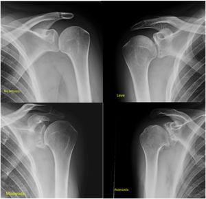 Estadios radiológicos de la artrosis según la clasificación de Samilson-Prieto.