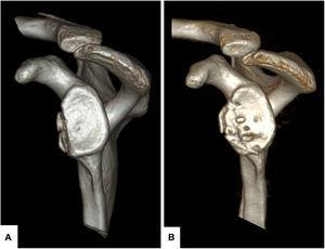 A) Imagen en TAC-3D en-face con supresión de la cabeza humeral del caso presentado en la figura 2 con defecto de aproximadamente el 20% del área glenoidea, que muestra 2 pequeños fragmentos óseos desplazados a medial respecto a la superficie glenoidea. B) Resultado a los 18 meses de la reconstrucción con aloinjerto de cresta ilíaca en donde se objetiva cómo la remodelación global, que afecta principalmente a la zona 6 en la parte más inferior y lejana a la glenoides, conduce a una buena cobertura del defecto con restauración del área glenoidea.