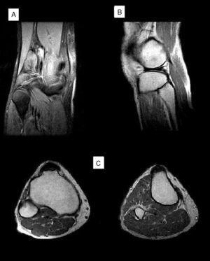 Resonancia magnética de la rodilla derecha en la que no se encuentran lesiones a nivel de la cabeza y cuello del peroné. A: corte coronal potenciado en T2. B: corte sagital potenciado en T1. C: corte axial potenciado en T1.