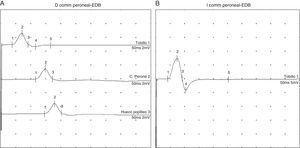 Electromiografía comparativa del nervio peroneo común derecho (A) e izquierdo (B) en la que se observa la afectación del nervio peroneo común derecho.