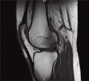Resonancia magnética del 17 de junio de 2014. La lesión osteocondral se delimita mejor en esta secuencia sagital potenciada en T1, rodeada por el edema hipointenso.