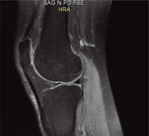Resonancia magnética del 28 de agosto de 2014. Sagital. Densidad protónica. La lesión osteocondral se ve con un tenue ribete de hiperintensidad con señal interna idéntica a la del hueso sano, sin lesión del cartílago.