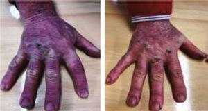 Fotografías de las manos tras 3 días de tratamiento.