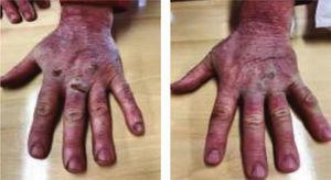 Fotografías de las manos tras 8 días de tratamiento.