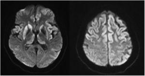 Secuencias DWI con restricción del córtex frontal e insular, putamen y caudados (asimétrica de predominio derecho) y tálamos (núcleo dorsomedial).