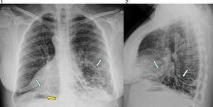 Radiografía posteroanterior y lateral de tórax. Bronquiectasias quísticas bibasales (flechas azules); dextrocardia con situs inversus (burbuja gástrica en el lado derecho con flecha naranja).