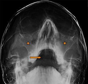 Proyección de Waters: aumento de densidad de partes blandas de los senos maxilares (estrella) y presencia de masa en la faringe (flecha).