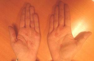 Rash máculo-papular en las palmas de las manos.