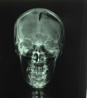 Imagen radiotransparente frontal izquierda.