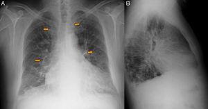 A y B) Radiografía PA y lateral de tórax: ensanchamiento mediastínico e hiliar bilateral (flechas), patrón reticulonodular en ambas bases y deformidad en la pared costal izquierda compatible con fracturas costales antiguas.