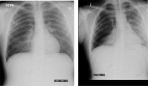 Neumotórax derecho: desplazamiento del mediastino a la izquierda.