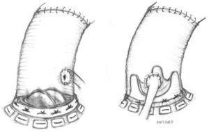 Sustitución de la aorta ascendente y de la válvula aórtica mediante técnica de Bentall y de Bono. A) Con prótesis mecánica. B) Con prótesis biológica.