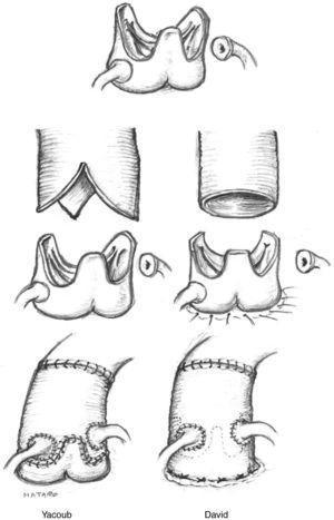 Sustitución de la aorta ascendente preservando la válvula aórtica mediante técnica de Yacoub (remodelling technique) y de David (reimplantation technique). En el primer caso el injerto de dacron se recorta para adaptarse a la válvula, quedando los triángulos intercomisurales «al aire». En el segundo caso la prótesis de dacron embute los remanentes de raíz aórtica y la válvula se reimplanta al tubo por dentro.