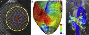 A)Tagging miocárdico en el ventrículo izquierdo, vista del eje corto. B)La tractografía mediante diffusion tensor imaging (DTI) muestra las fibras miocárdicas del ventrículo izquierdo; vista inferior. Cortesía de Nicolas Toussaint. C)4D-flow en las venas pulmonares y aorta de un paciente con cirugía paliativa de Fontan.