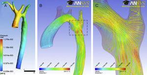 Simulación mediante mecánica de fluidos computacional en un paciente con coartación de la aorta residual. La geometría de la aorta y el flujo específico a través de la válvula aórtica han sido adquiridos mediante resonancia magnética cardiaca. A)Mapa de presión en superficie de la aorta durante el momento sistólico de mayor gradiente a través de la coartación. B)La simulación de las líneas de flujo (streamlines) durante la sístole muestra las áreas con mayor velocidad y wall-shear stress en la región ístmica. C)Ampliación del área rectangular mostrada en B; nótese el patrón de turbulencia en la zona de la coartación residual.