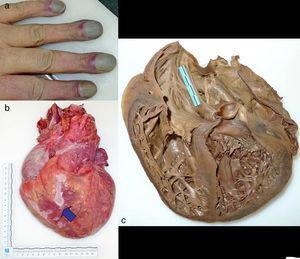 a) Acrocianosis y acropaquía. b) Cardiomegalia con tejido fibrótico epicárdico (señalado con flechas). c) Corte de 4 cámaras tras fijación en formol. Defecto septal auricular grande de 40×35mm.