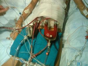 Asistencia neumática de larga duración biventricular (Berlin Heart Excoor®).
