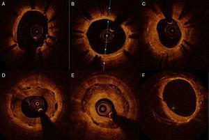 Seguimiento del stent implantado. A) Struts no endotelizados al seguimiento (de 1 a 7). B) Stent con endotelización completa de todos los struts. C) Hiperplasia neointimal con patrón homogéneo. D) Stent bioabsorbible con patrón de hiperplasia intimal heterogéneo. E) Stent bioabsorbible con patrón de hiperplasia en capas. F) Stent metálico con patrón de neoarterioesclerosis (placa lipídica con calcio) de 6 a 12.