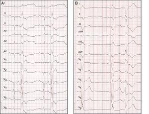 A) Ejemplos de ECG en pacientes con EV de origen en TSVD y B) con origen en el VI a nivel del músculo papilar anterolateral.