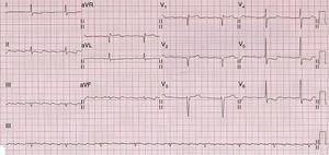 Otro ejemplo de electrocardiograma en la amiloidosis cardíaca, donde además de los bajos voltajes en las derivaciones de los miembros puede apreciarse un patrón de seudoinfarto anteroseptal.