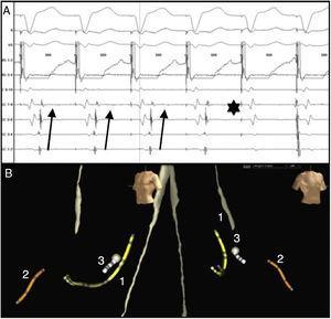 A) Electrogramas intracavitarios mostrando His situado en ventrículo derecho y seno coronario de proximal (9-10) a distal (1-2). Mediante estimulación ventricular a 500ms se observa conducción retrógrada a través de la vía accesoria con mayor precocidad en seno coronario distal, que desaparece durante la ablación con disociación ventrículo-atrial (asterisco). B) Visión LAO y RAO en sistema EnSite® NavX® (St Jude Medical, Tex. EE. UU.). En el n.° 1, catéter de seno coronario. N.° 2, catéter situado en His. En n.° 3, catéter de ablación, con punto ablación en región lateral izquierda del anillo mitral.