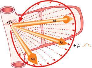 Vector de despolarización auricular derecho e izquierdo y asa de P. Se ven también los múltiples vectores instantáneos sucesivos. AD: aurícula derecha; AI: aurícula izquierda; G: global; NS: nodo sinusal.