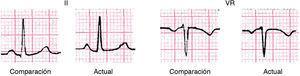 Paciente de 52 años con crisis recurrentes de pericarditis idiopática. Véase en II el descenso y en VR el ascenso del PR (1mm) comparado con el ECG control.