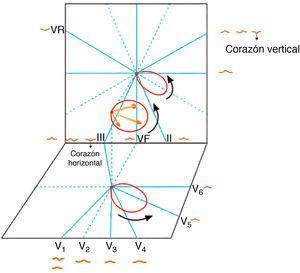 Morfología de la onda P en las diferentes derivaciones, según cuál sea la proyección del asa de P sobre los hemicampos positivo y negativo de dichas derivaciones.