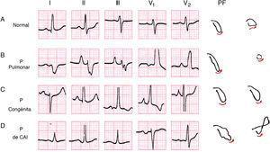 Ejemplo de las morfologías y las asas de la onda P normal (A); de las ondas P de crecimiento auricular derecho de tipo pulmonale (ÂP derecho) (B) y congenitale (ÂP algo izquierdo) (C) y de la onda P de crecimiento auricular izquierdo (D). A la derecha se ven las morfologías de las asas de P en el PF y PH.
