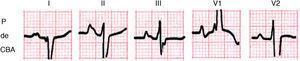 Ejemplo de la onda P de crecimiento biauricular: ancha y alta en el PF y en V1±con primer modo positivo evidente y seguido de modo negativo ancho (≥40ms).
