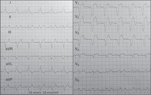 BRIHH conocido, en contexto de dolor anginoso, que muestra elevación ST>5mm en V1-V3, sin otros criterios de Sgarbossa, en un paciente con oclusión aguda de DA proximal.
