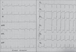 Elevación ST en aVR> V1 y descenso ST en múltiples derivaciones por oclusión aguda del tronco común izquierdo.