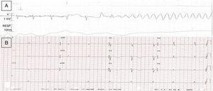 1A Electrocardiograma (ECG) durante síntomas con inicio de la TVS helicoidal a 250lpm. 1B ECG posterior al episodio con ritmo sinusal a 60lpm y QTc de 570mseg.