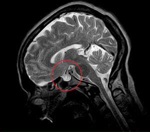 Corte de RM craneal abierta de bajo campo, secuencia T2 en plano sagital, donde se evidencia silla turca vacía (círculo). Debido a claustrofobia a la paciente no se le pudo realizar RM de alto campo.