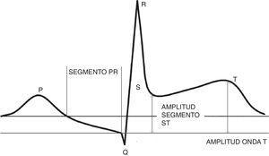 La imagen muestra la representación de los distintos segmentos electrocardiográficos y de la línea de base (segmento TP) utilizada para la medición de la elevación del segmento ST y la amplitud de la onda T.