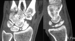 Coronal and sagittal CT sections confirming the fragmentation of the proximal pole of the scaphoid, with no signs of bone consolidation.